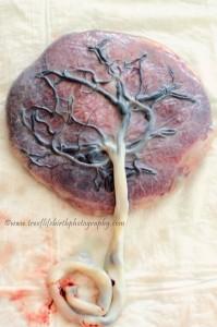 Placenta tree of life, treoflifebirthphotography.com